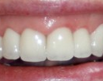 Teeth whitening Basingstoke