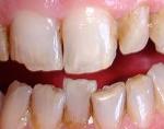 Cosmetic dentists Basingstoke