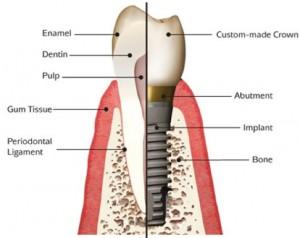 Dental Implants Basingstoke