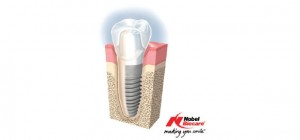Nobel Biocare Implants