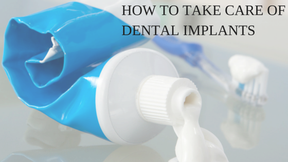 take care of dental implants
